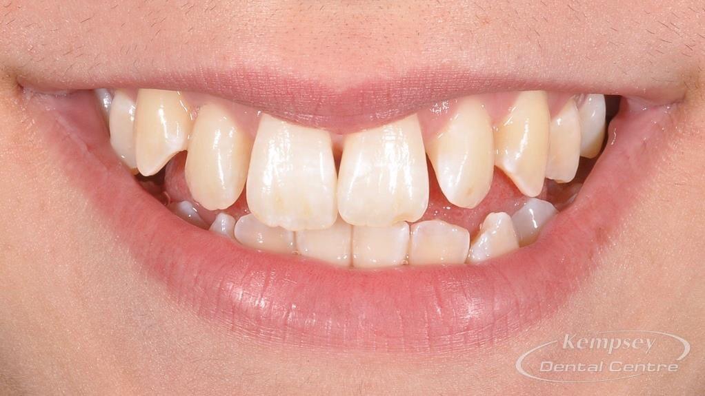 Before- Orthodontics-59