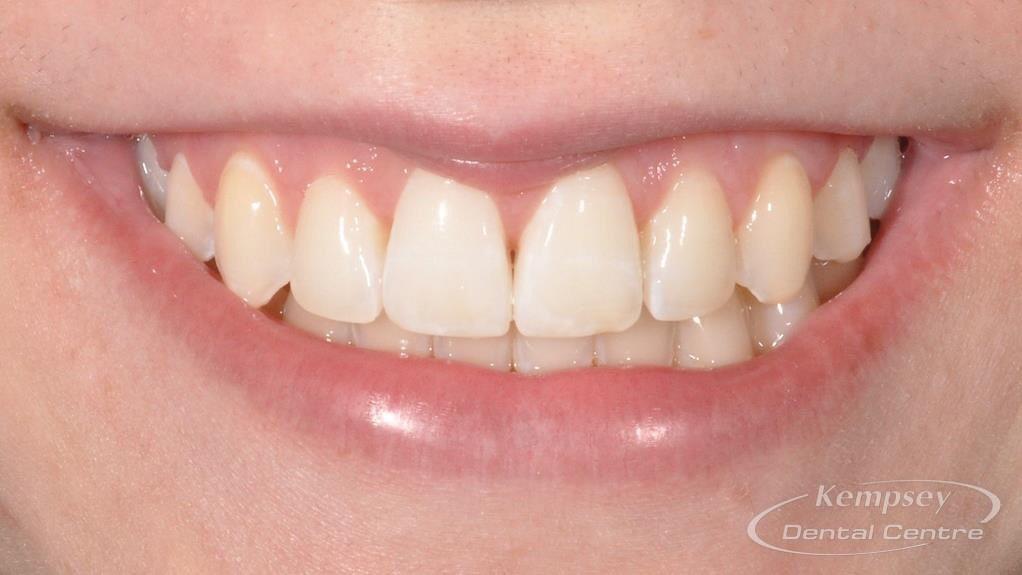 After- Orthodontics-59