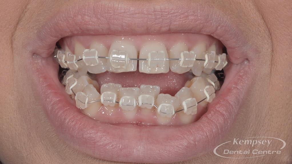 Before- Orthodontics-5