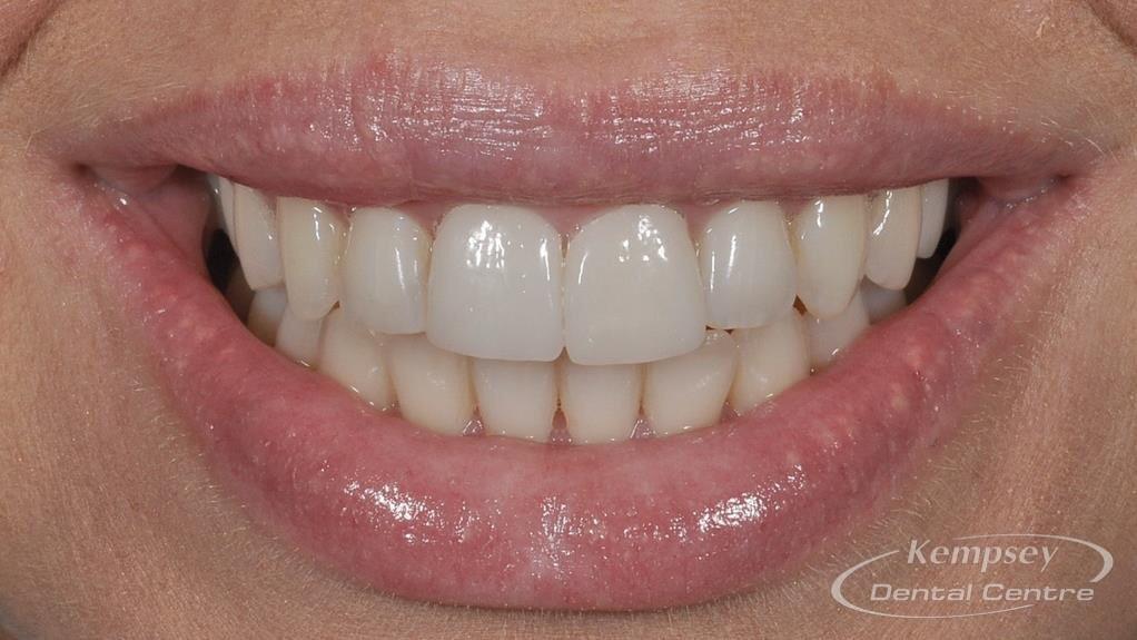 After- Orthodontics-5
