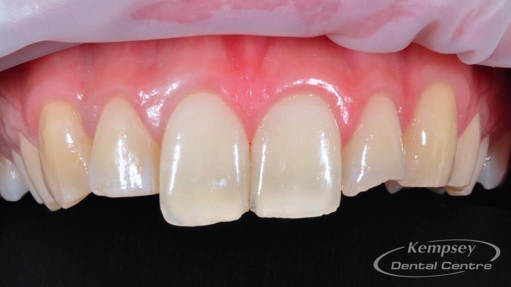 Before-Odontoplasty-1