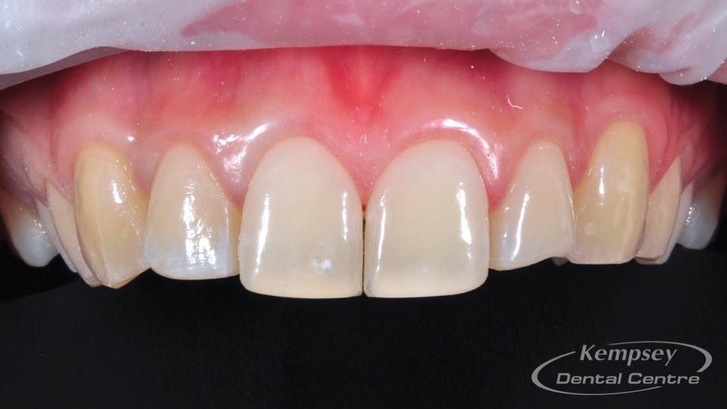 After-Odontoplasty-1
