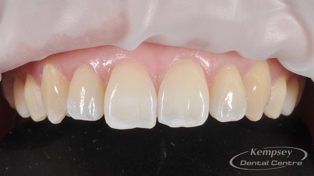 Before-Odontoplasty-2