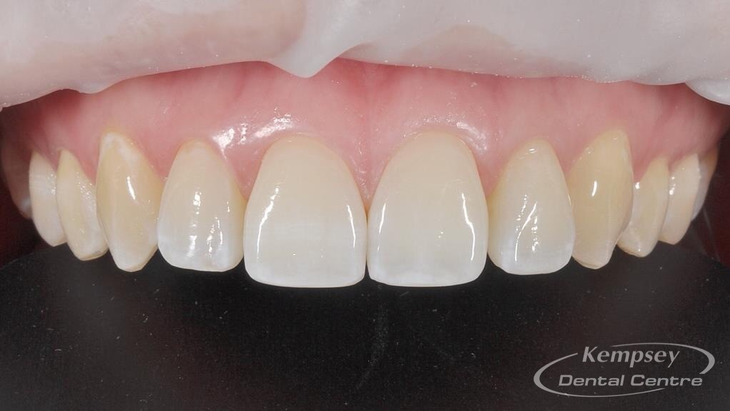 After-Odontoplasty-2