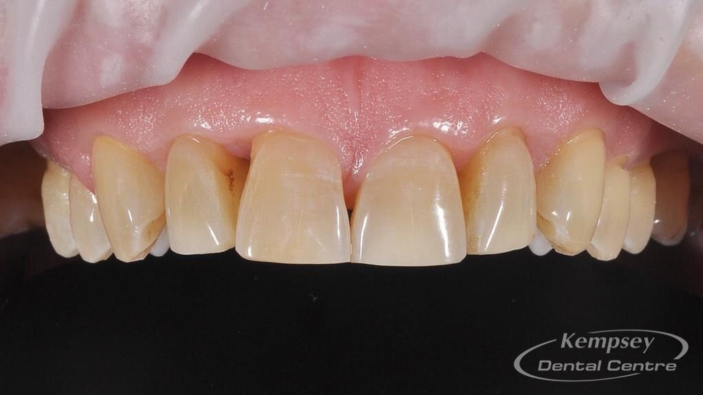 After-Odontoplasty-3