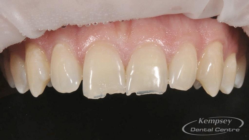 Before-Odontoplasty-5