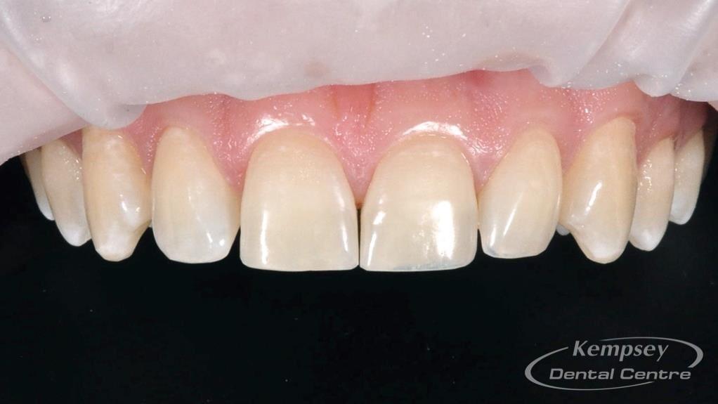 After-Odontoplasty-5