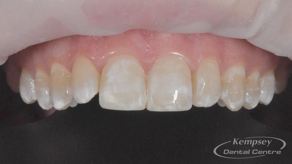 After-Odontoplasty-8