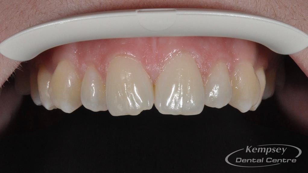 Before-Odontoplasty-9