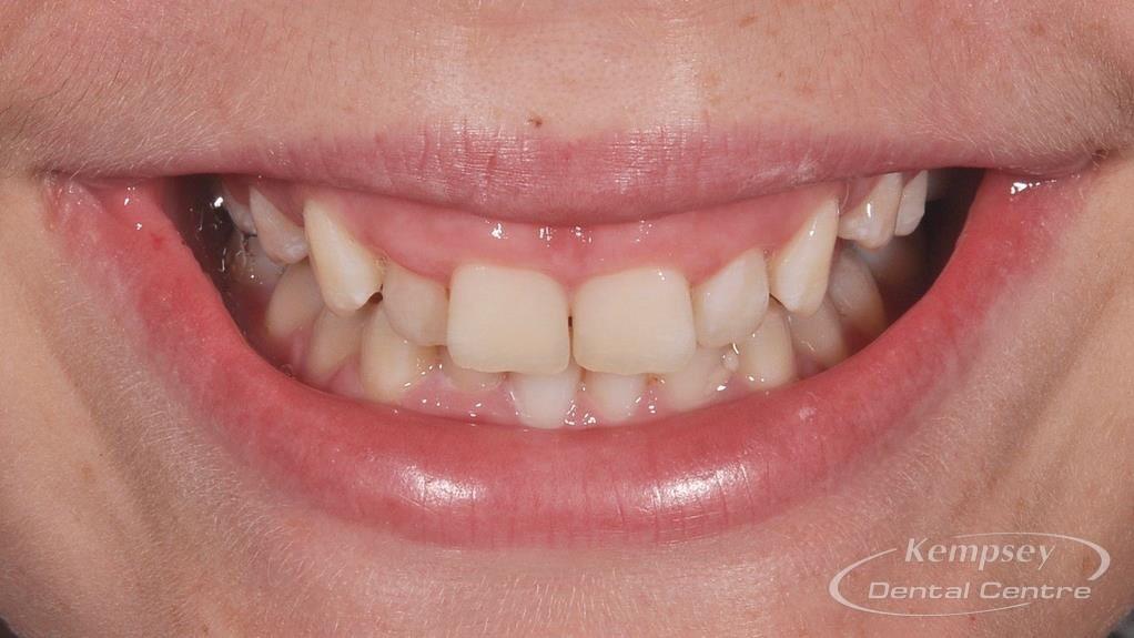 Before- Orthodontics-60