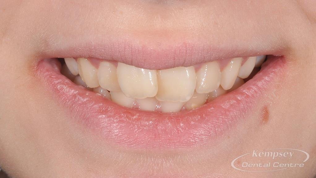 Before- Orthodontics-63