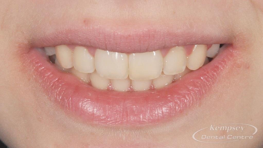 After- Orthodontics-63
