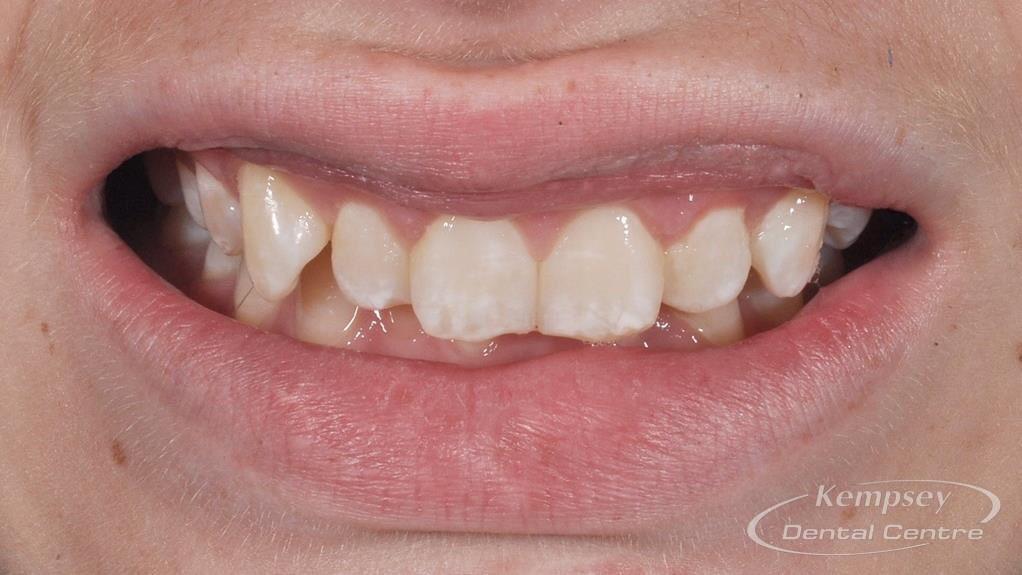 Before- Orthodontics-64