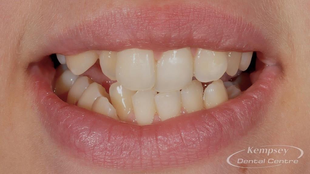 Before- Orthodontics-65