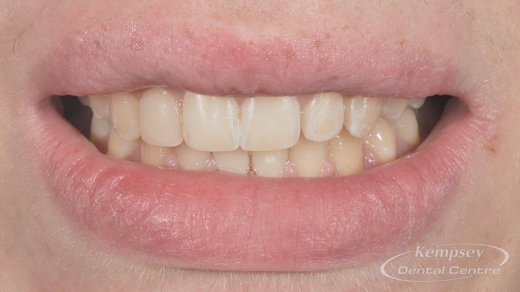 After- Orthodontics-6