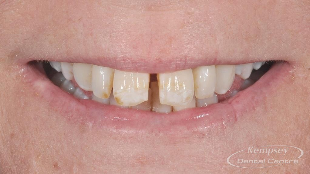 Before-Smilemakeover-6
