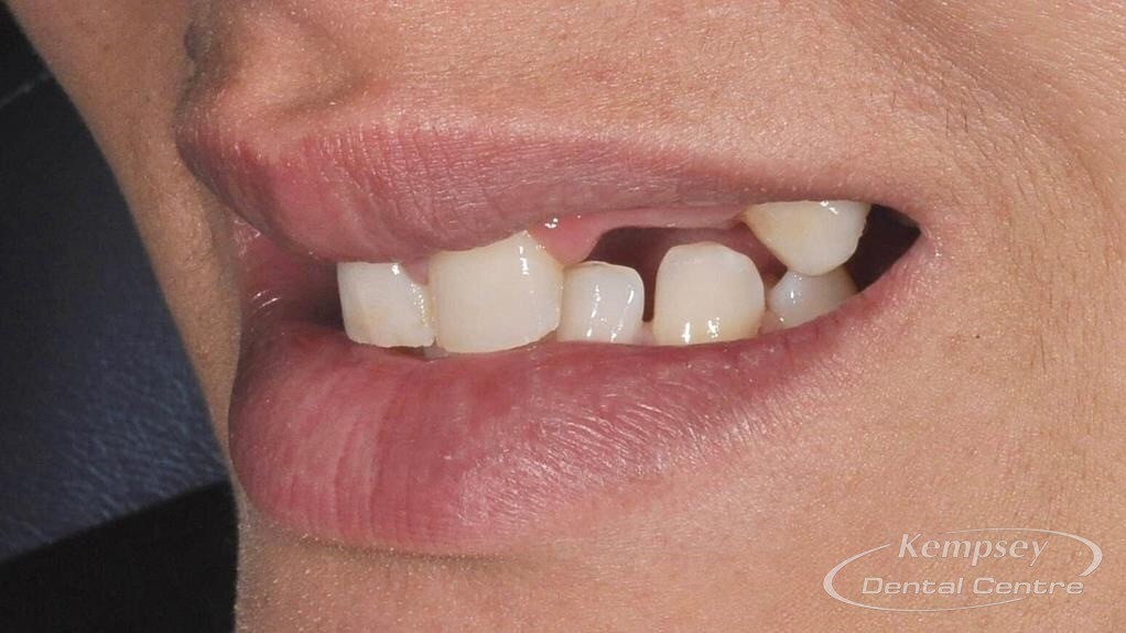 Before-Smilemakeover-7