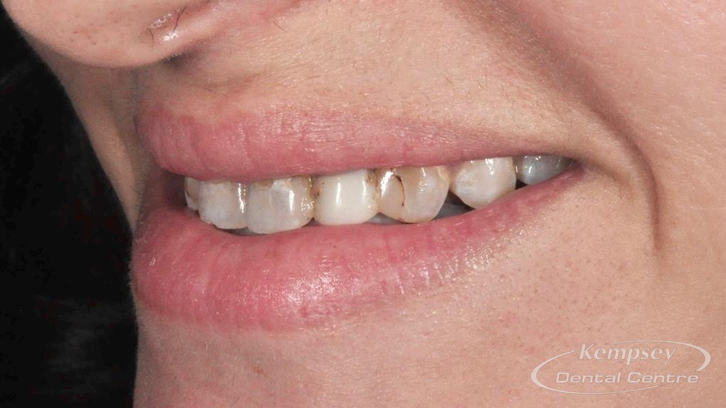 Before-Smilemakeover-9