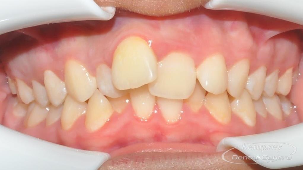 Before- Orthodontics-7