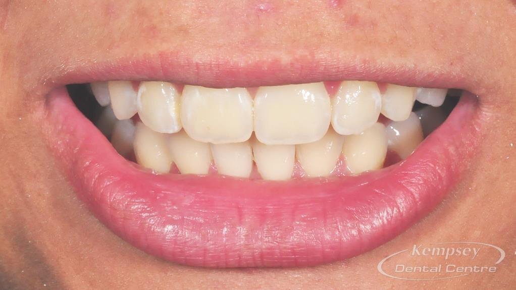 After- Orthodontics-7