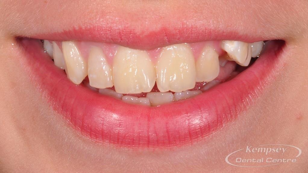 Before- Orthodontics-8