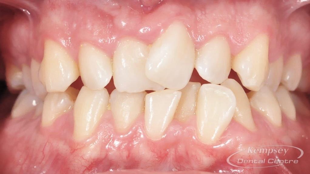 Before- Orthodontics-9