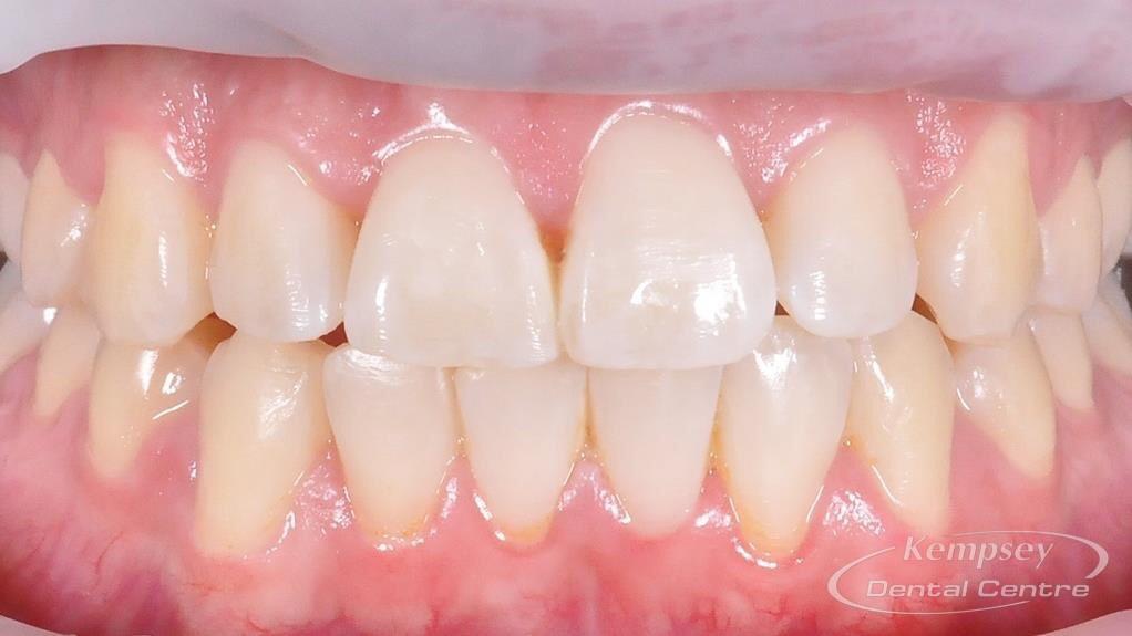 After- Orthodontics-9